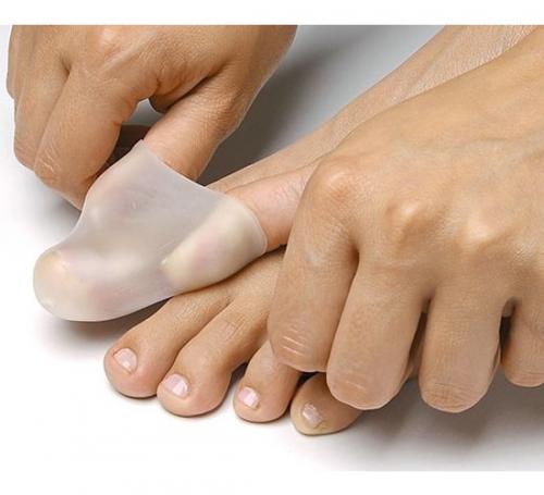 Zehenschutz bei Nagelfalz Schmerzen