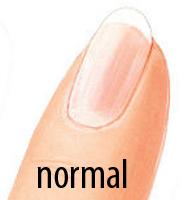 Normaler Fingernagel