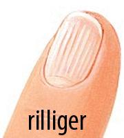 Riillen auf dem Fingernagel