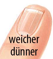Dünner und weicher Fingernagel
